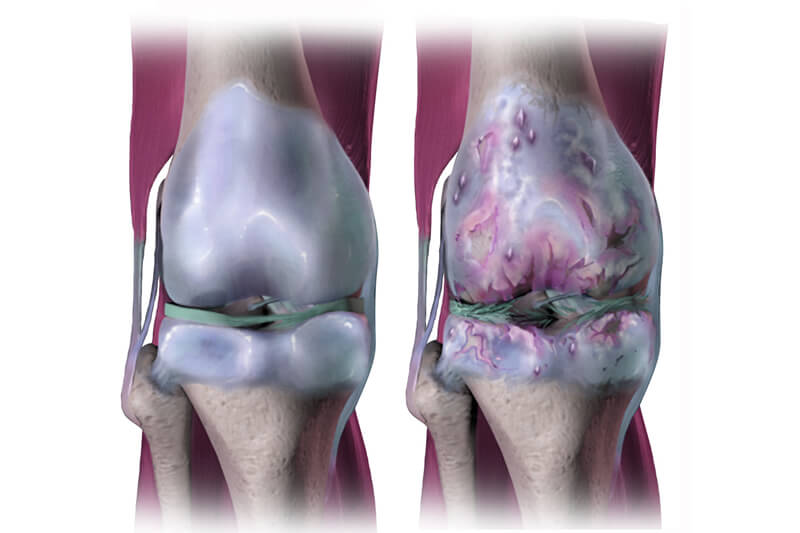 Pilates para la artrosis